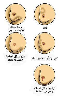 250px-Breast_cancer_illustrations_-_Arabic